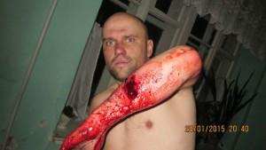 Ранение полученное Кривко в бою под Санжаровкой